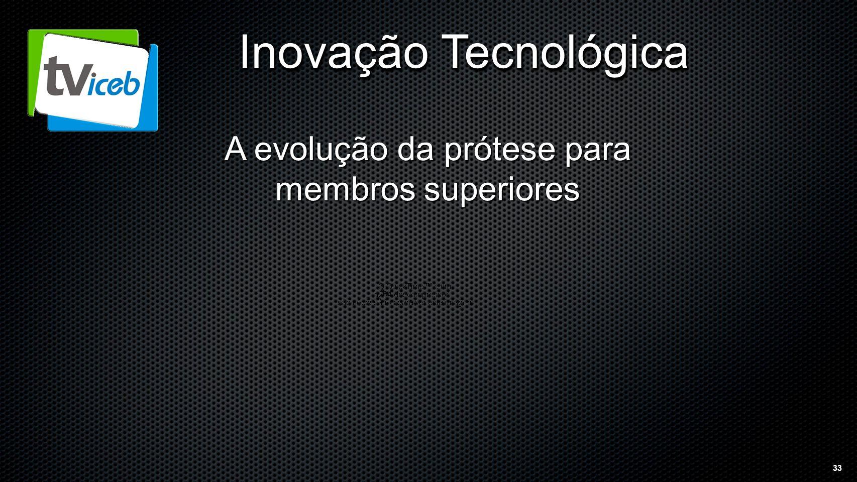 33 Inovação Tecnológica A evolução da prótese para membros superiores