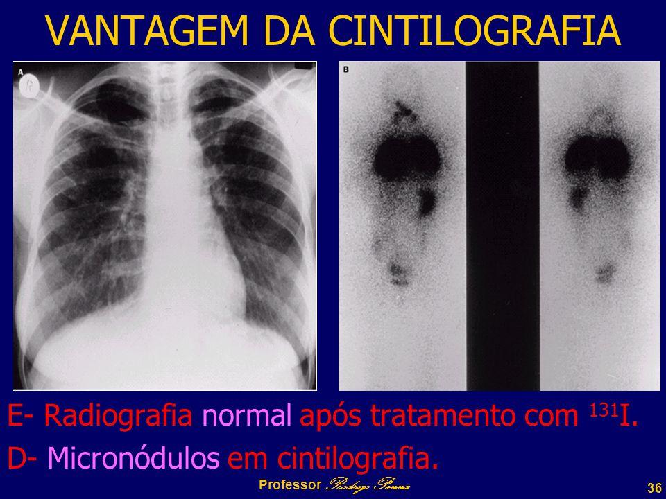 36 Professor Rodrigo Penna VANTAGEM DA CINTILOGRAFIA E- Radiografia normal após tratamento com 131 I.