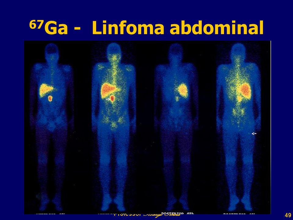 49 Professor Rodrigo Penna 67 Ga - Linfoma abdominal