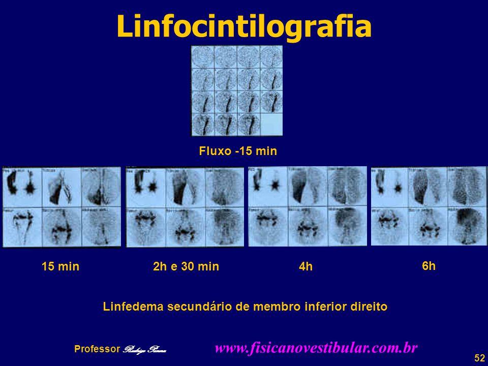 52 Linfocintilografia 15 min 2h e 30 min4h 6h Linfedema secundário de membro inferior direito Fluxo -15 min Professor Rodrigo Penna www.fisicanovestibular.com.br