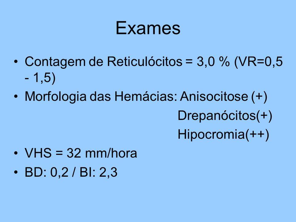 Exames Contagem de Reticulócitos = 3,0 % (VR=0,5 - 1,5) Morfologia das Hemácias: Anisocitose (+) Drepanócitos(+) Hipocromia(++) VHS = 32 mm/hora BD: 0,2 / BI: 2,3