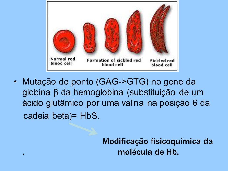 Mutação de ponto (GAG->GTG) no gene da globina β da hemoglobina (substituição de um ácido glutâmico por uma valina na posição 6 da cadeia beta)= HbS.