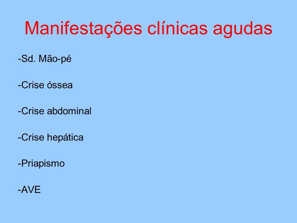 Manifestações clínicas agudas -Sd.