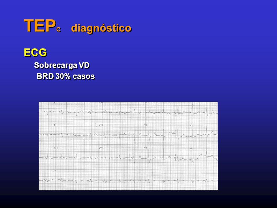 TEP C diagnóstico ECG Sobrecarga VD BRD 30% casos ECG Sobrecarga VD BRD 30% casos