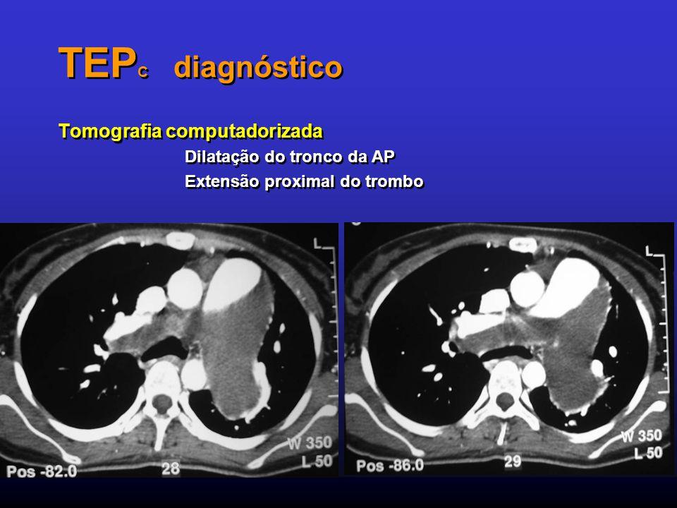 TEP C diagnóstico Tomografia computadorizada Dilatação do tronco da AP Extensão proximal do trombo Tomografia computadorizada Dilatação do tronco da A