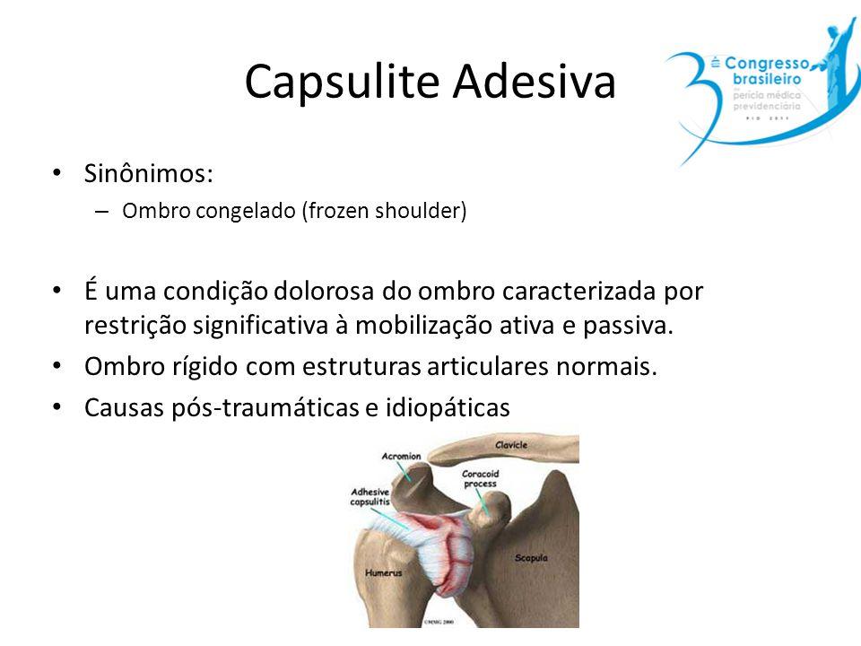 Capsulite Adesiva Sinônimos: – Ombro congelado (frozen shoulder) É uma condição dolorosa do ombro caracterizada por restrição significativa à mobiliza