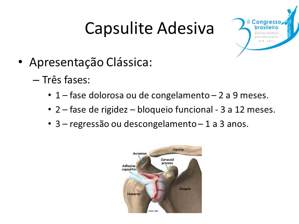 Capsulite Adesiva Apresentação Clássica: – Três fases: 1 – fase dolorosa ou de congelamento – 2 a 9 meses. 2 – fase de rigidez – bloqueio funcional -