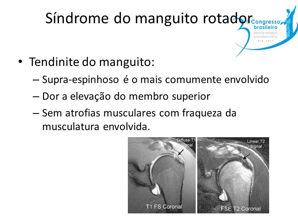 Síndrome do manguito rotador Tendinite do manguito: – Supra-espinhoso é o mais comumente envolvido – Dor a elevação do membro superior – Sem atrofias