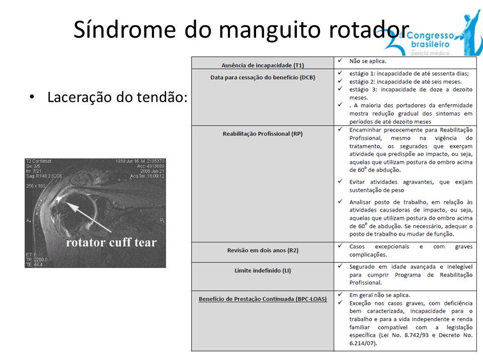 Síndrome do manguito rotador Laceração do tendão: