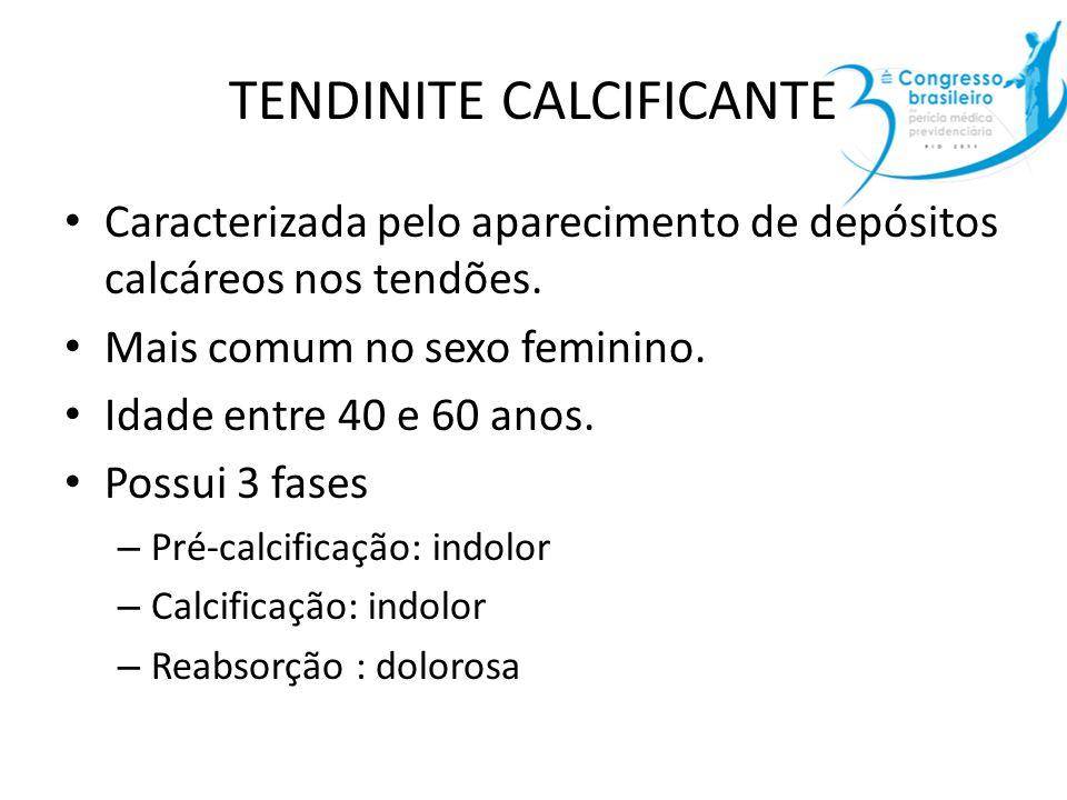 TENDINITE CALCIFICANTE Caracterizada pelo aparecimento de depósitos calcáreos nos tendões. Mais comum no sexo feminino. Idade entre 40 e 60 anos. Poss