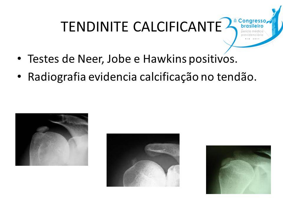 TENDINITE CALCIFICANTE Testes de Neer, Jobe e Hawkins positivos. Radiografia evidencia calcificação no tendão.