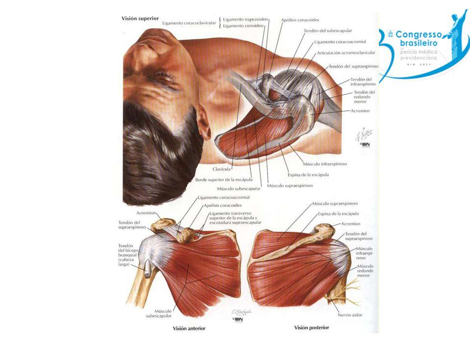 Síndrome do manguito rotador Laceração do tendão – Estágio 1: Mais frequente menores de 25 anos; dor em trajeto de tendão de supra-espinhal, relacionada ao esforço, que melhora com repouso, geralmente sem dor noturna e sem limitação de movimentos.