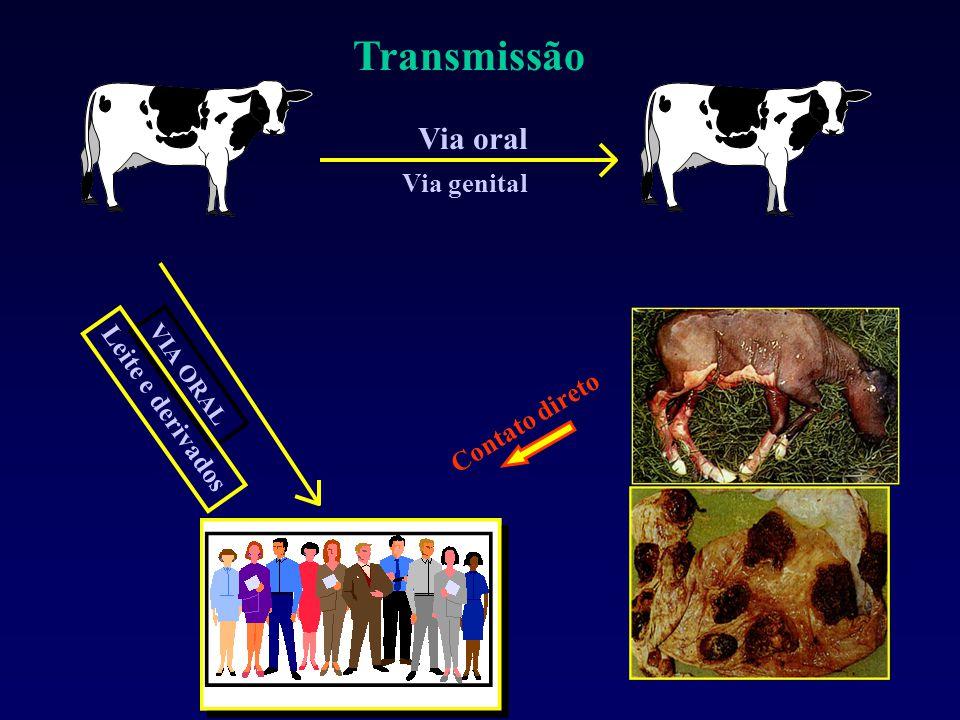 VIA ORAL Leite e derivados Via oral Via genital Contato direto Transmissão