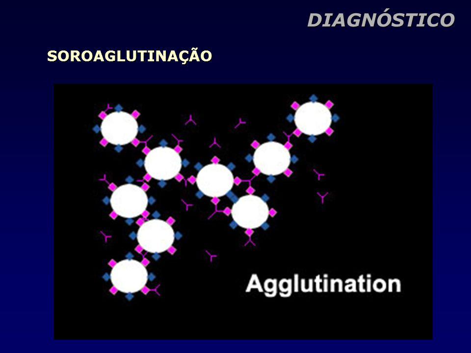 DIAGNÓSTICO SOROAGLUTINAÇÃO