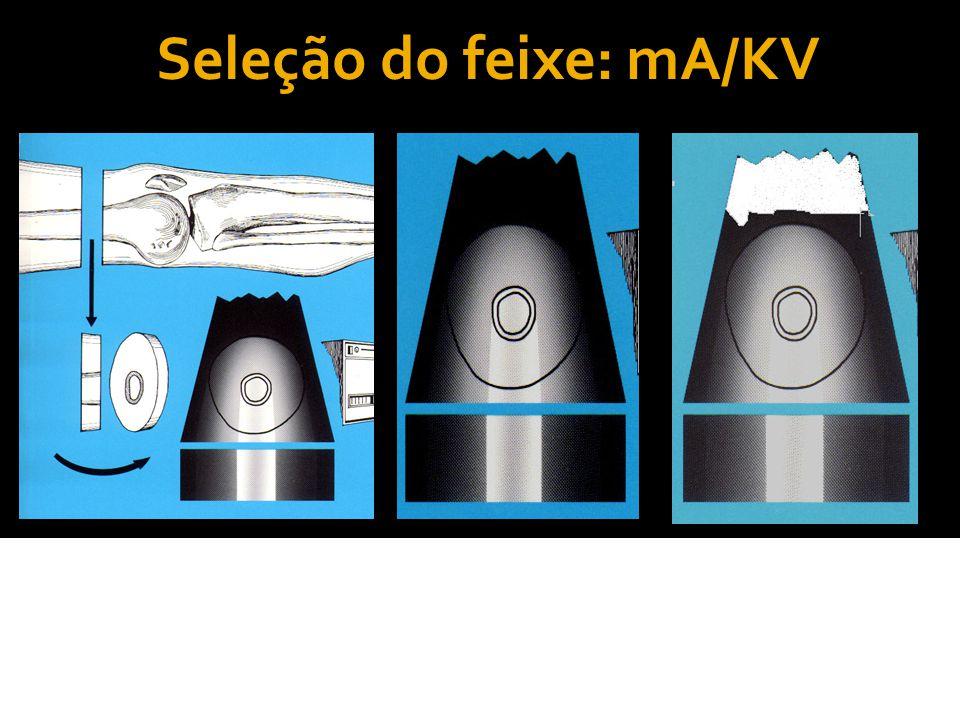 Seleção do mA mA: Quanto maior for a corrente elétrica empregada no tubo, maior será a quantidade de elétrons emitidos e, consequentemente, maior será a quantidade de fótons de raios-x produzidos.