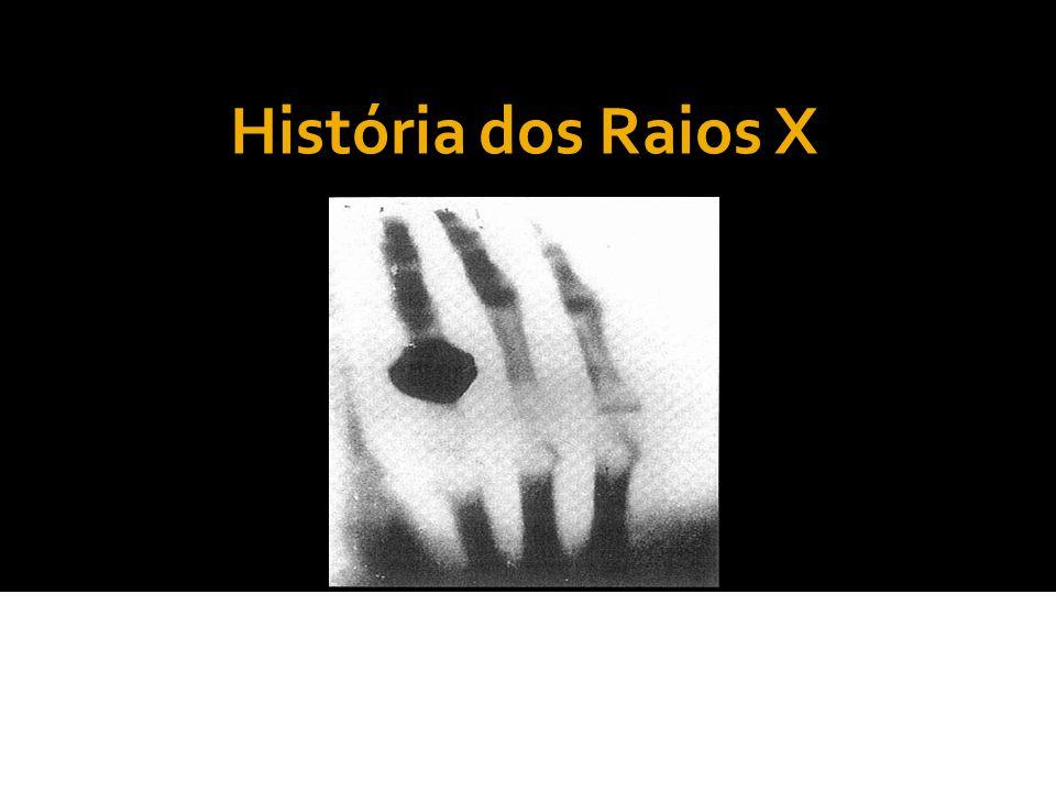 História dos Raios X A abreografia, idealizada por Manoel Dias de Abreu em 1936, surgiu em março de 1937, no Rio de Janeiro, e foi um método de grande importância na época em razão da epidemia de tuberculose.