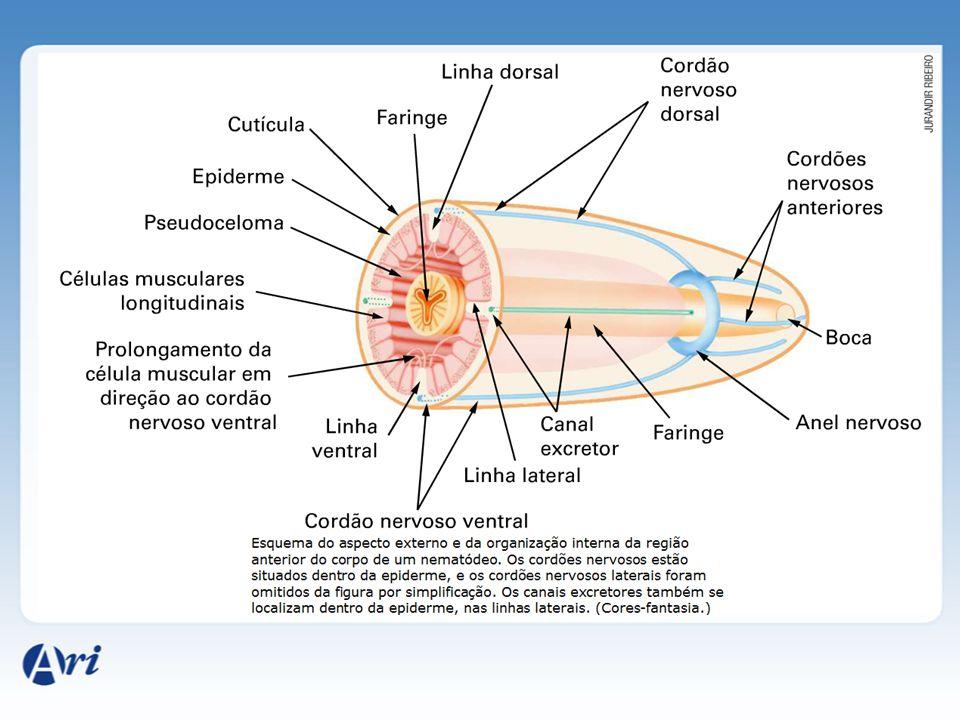 Doença do Jeca Tatu (personagem de Monteiro Lobato que tinha o costume de andar descalço).