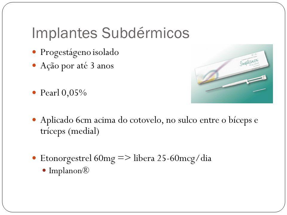 Implantes Subdérmicos Progestágeno isolado Ação por até 3 anos Pearl 0,05% Aplicado 6cm acima do cotovelo, no sulco entre o bíceps e tríceps (medial)