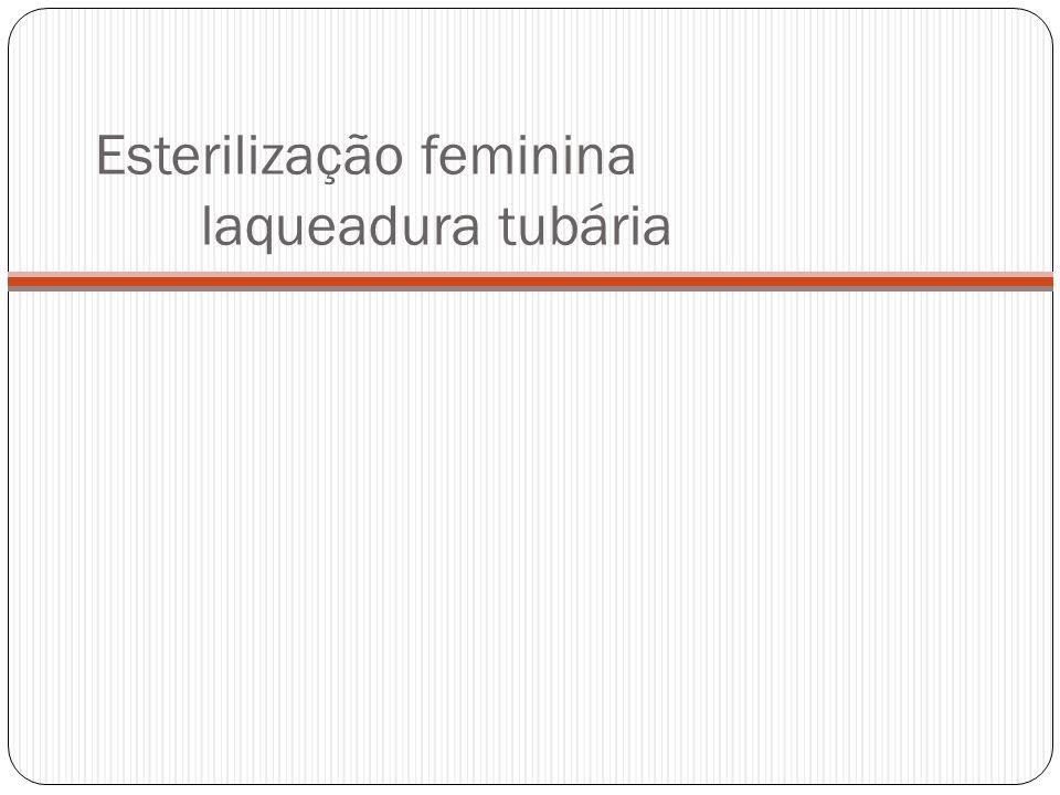 Esterilização feminina laqueadura tubária