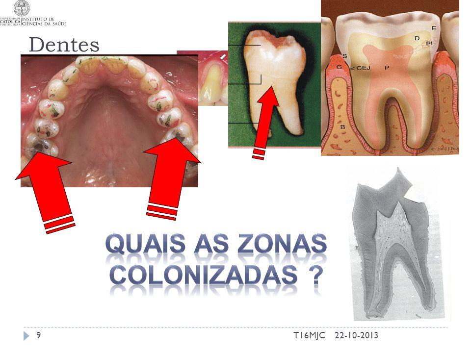 Dentes 22-10-20139T16MJC