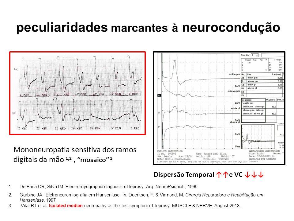 peculiaridades marcantes à neurocondução 1.De Faria CR, Silva IM. Electromyographic diagnosis of leprosy. Arq. NeuroPsiquiatr, 1990 2.Garbino JA. Elet