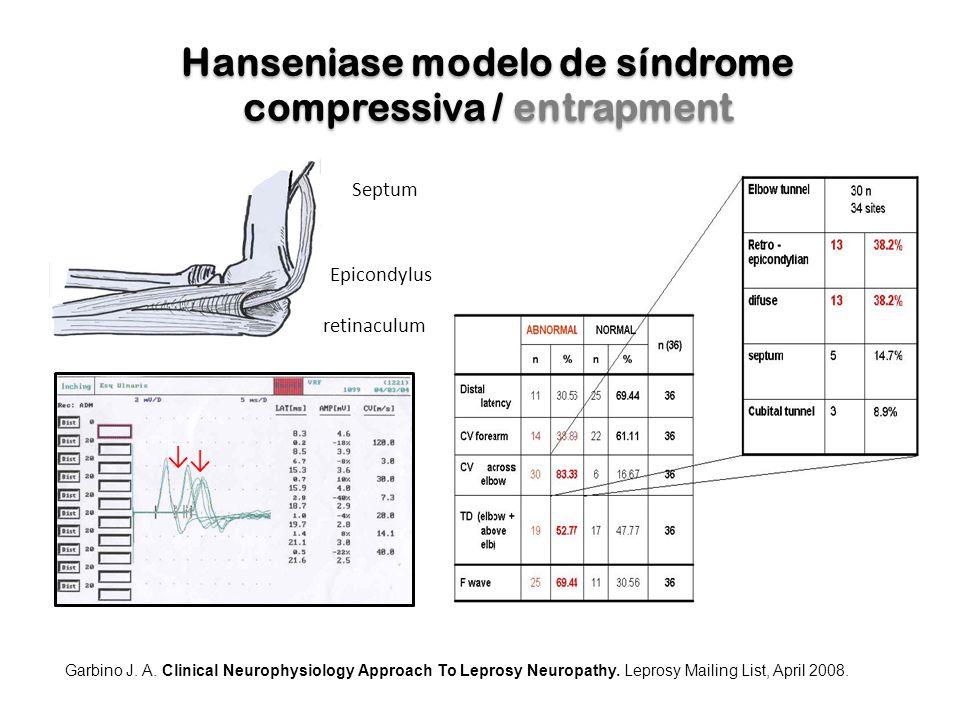 Hanseniase modelo de síndrome compressiva / entrapment Septum Epicondylus retinaculum ↓ ↓ Garbino J. A. Clinical Neurophysiology Approach To Leprosy N