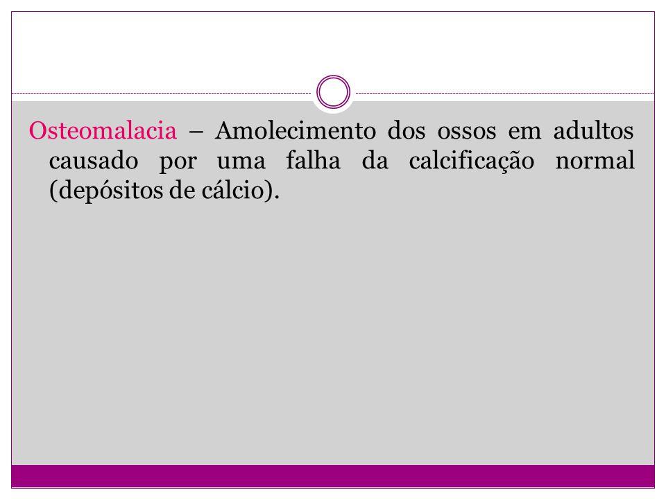 Osteomalacia – Amolecimento dos ossos em adultos causado por uma falha da calcificação normal (depósitos de cálcio).