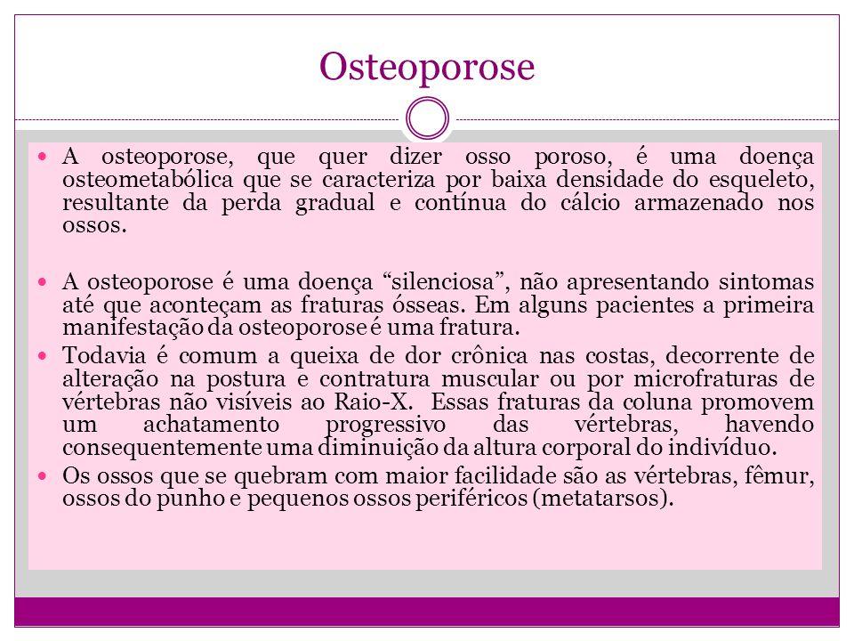 Osteoporose A osteoporose, que quer dizer osso poroso, é uma doença osteometabólica que se caracteriza por baixa densidade do esqueleto, resultante da perda gradual e contínua do cálcio armazenado nos ossos.