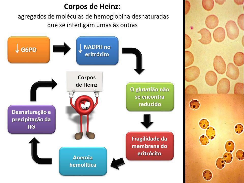 Corpos de Heinz: agregados de moléculas de hemoglobina desnaturadas que se interligam umas às outrasG6PDG6PD NADPH no eritrócito Fragilidade da membra