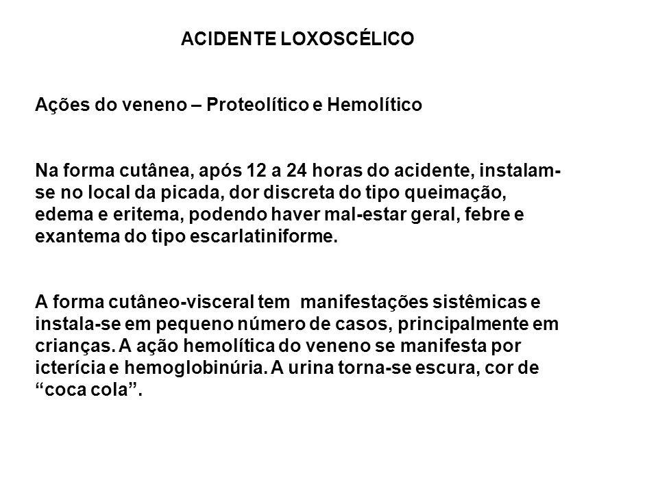 ACIDENTE LOXOSCÉLICO Ações do veneno – Proteolítico e Hemolítico Na forma cutânea, após 12 a 24 horas do acidente, instalam- se no local da picada, dor discreta do tipo queimação, edema e eritema, podendo haver mal-estar geral, febre e exantema do tipo escarlatiniforme.