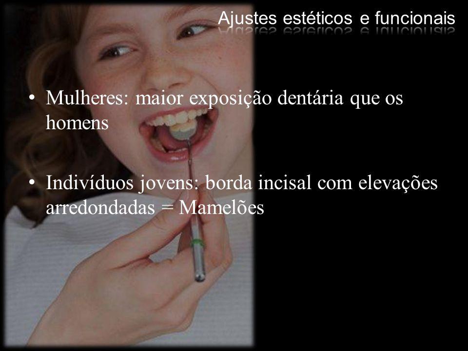 Mulheres: maior exposição dentária que os homens Indivíduos jovens: borda incisal com elevações arredondadas = Mamelões