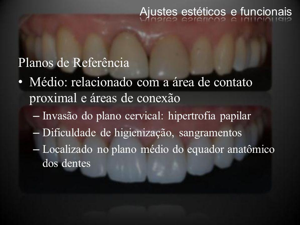Planos de Referência Médio: relacionado com a área de contato proximal e áreas de conexão –Invasão do plano cervical: hipertrofia papilar –Dificuldade