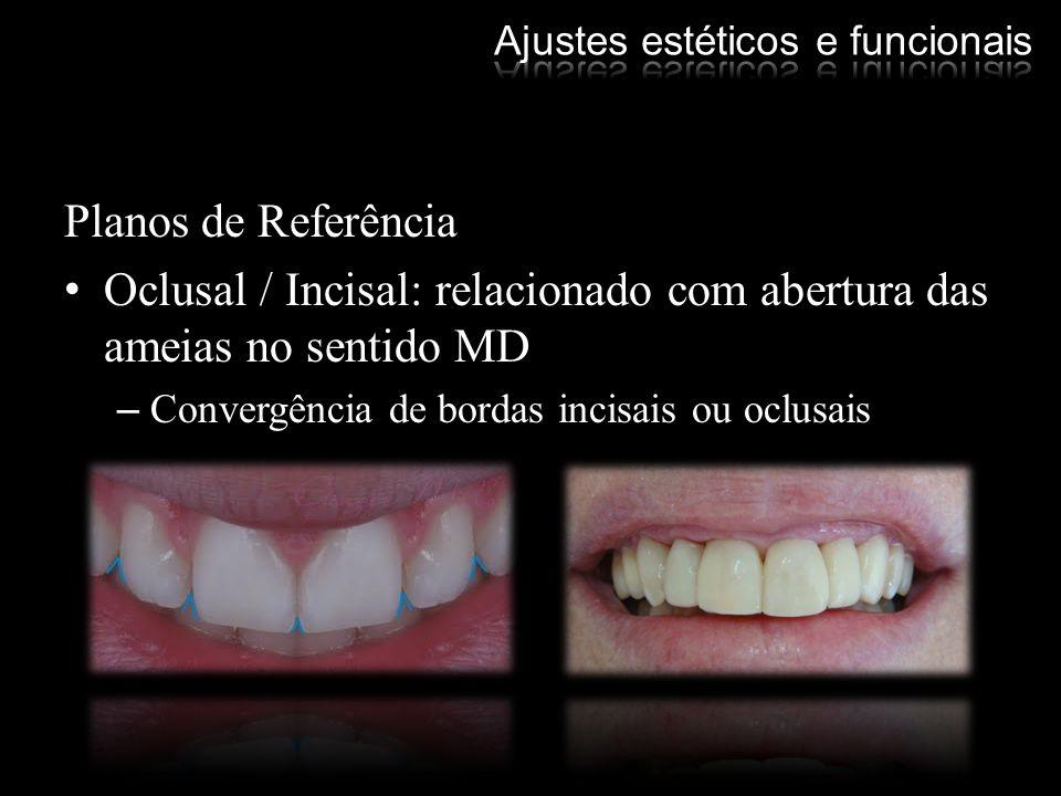 Planos de Referência Oclusal / Incisal: relacionado com abertura das ameias no sentido MD –Convergência de bordas incisais ou oclusais