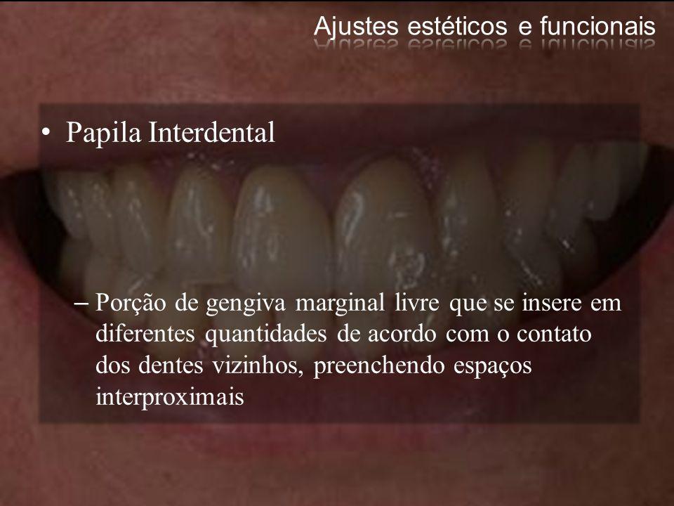 Papila Interdental –Porção de gengiva marginal livre que se insere em diferentes quantidades de acordo com o contato dos dentes vizinhos, preenchendo