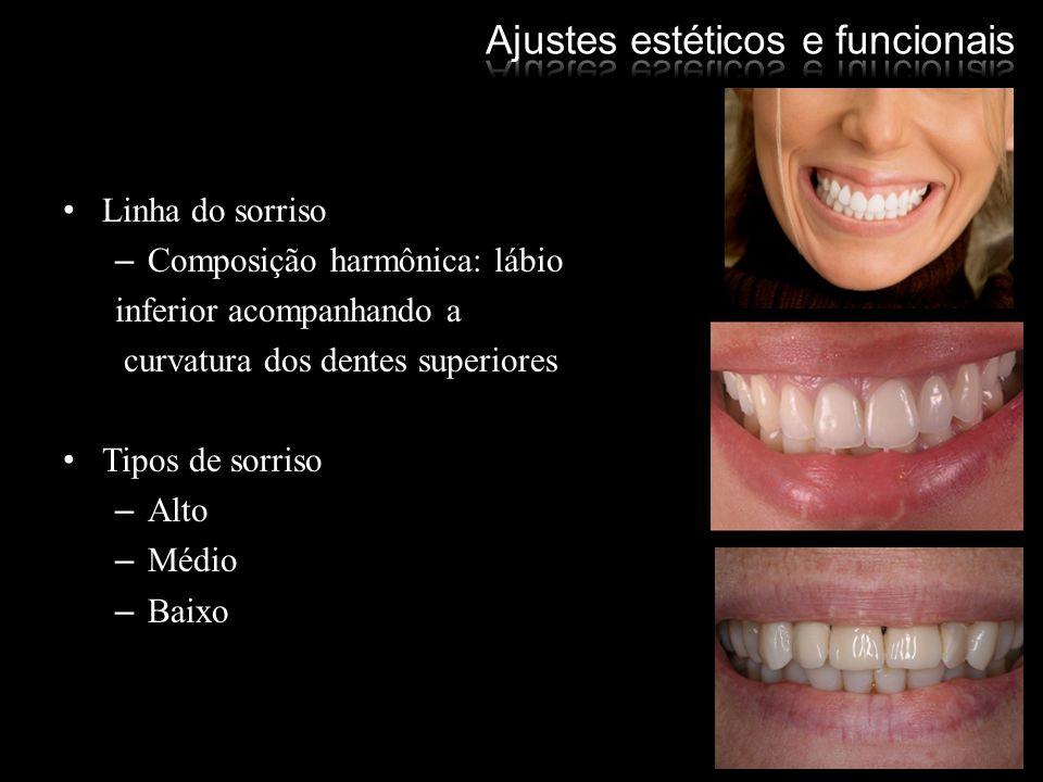 Linha do sorriso –Composição harmônica: lábio inferior acompanhando a curvatura dos dentes superiores Tipos de sorriso –Alto –Médio –Baixo