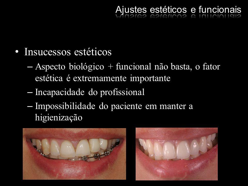 Insucessos estéticos –Aspecto biológico + funcional não basta, o fator estética é extremamente importante –Incapacidade do profissional –Impossibilida