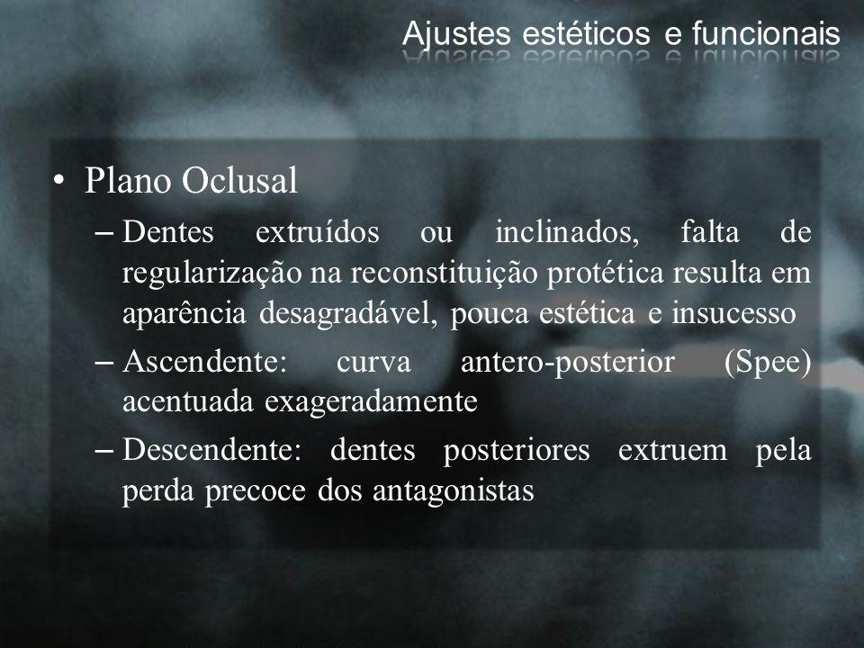 Plano Oclusal –Dentes extruídos ou inclinados, falta de regularização na reconstituição protética resulta em aparência desagradável, pouca estética e