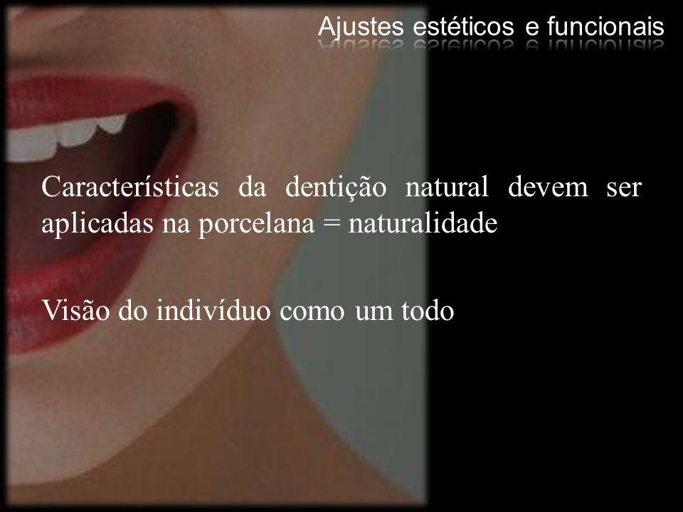 Características da dentição natural devem ser aplicadas na porcelana = naturalidade Visão do indivíduo como um todo