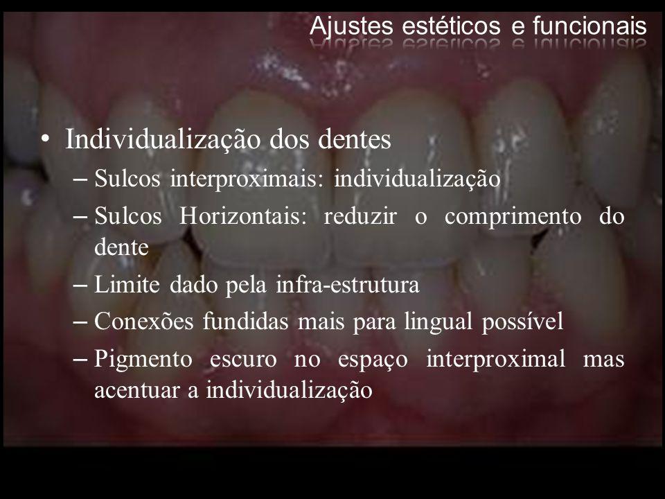 Individualização dos dentes –Sulcos interproximais: individualização –Sulcos Horizontais: reduzir o comprimento do dente –Limite dado pela infra-estru