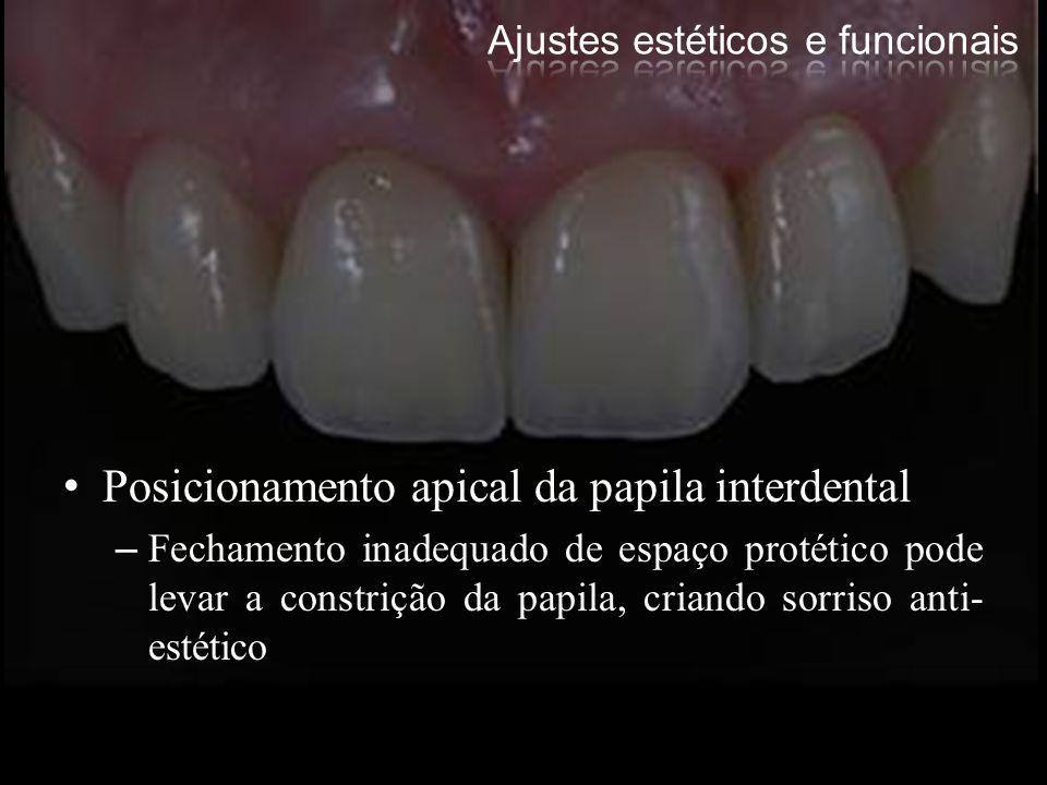 Posicionamento apical da papila interdental –Fechamento inadequado de espaço protético pode levar a constrição da papila, criando sorriso anti- estéti