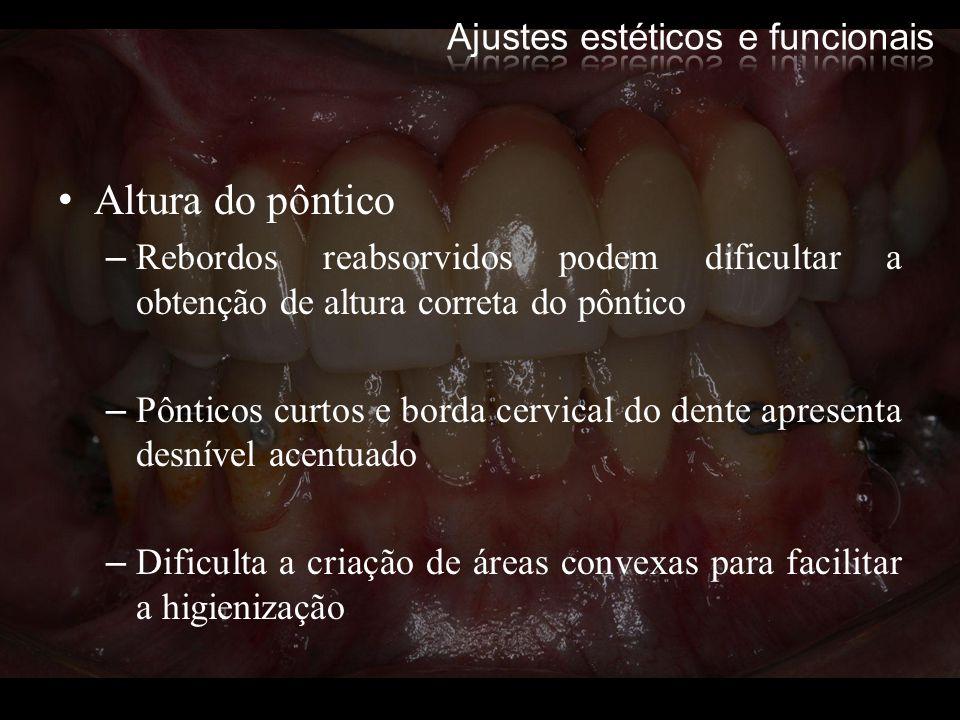 Altura do pôntico –Rebordos reabsorvidos podem dificultar a obtenção de altura correta do pôntico –Pônticos curtos e borda cervical do dente apresenta