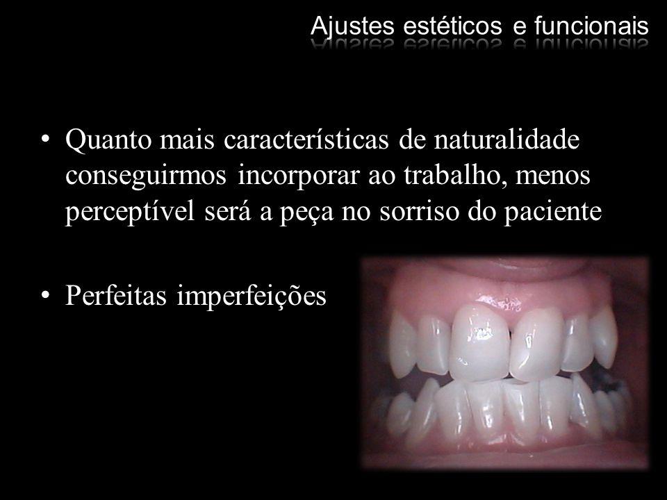 Dentes naturais sempre apresentam contornos arredondados Linhas retas são formadas pela função