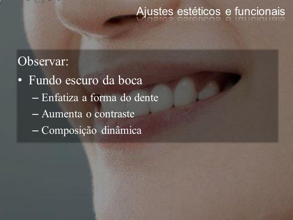 Sulcos Vestibulares –Lóbulos do desenvolvimento –Periquimáceas: 1/3 cervical dos dentes Manifestações das estrias de Retzius