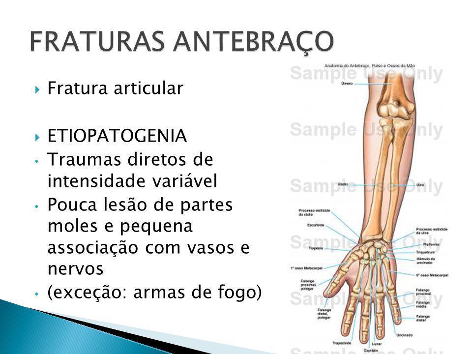  Fratura articular  ETIOPATOGENIA Traumas diretos de intensidade variável Pouca lesão de partes moles e pequena associação com vasos e nervos (exceç