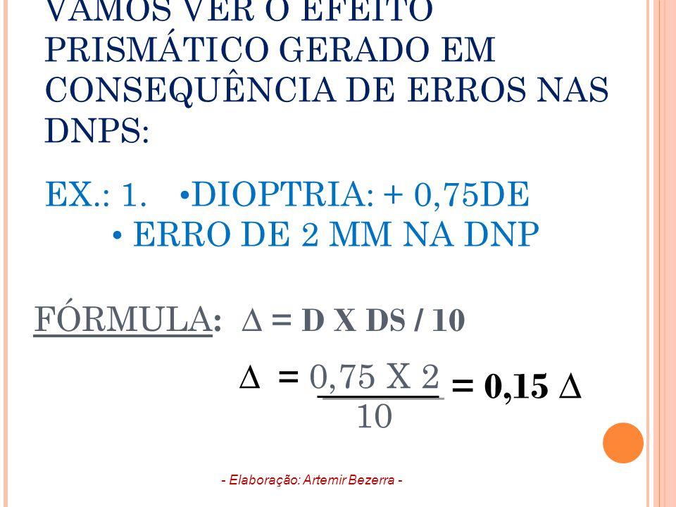 VAMOS VER O EFEITO PRISMÁTICO GERADO EM CONSEQUÊNCIA DE ERROS NAS DNPS: EX.: 1. DIOPTRIA: + 0,75DE ERRO DE 2 MM NA DNP FÓRMULA : ∆ = D X DS / 10 ∆ = 0
