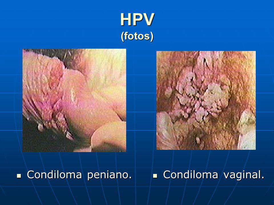 HPV (fotos) Condiloma peniano. Condiloma peniano. Condiloma vaginal. Condiloma vaginal.