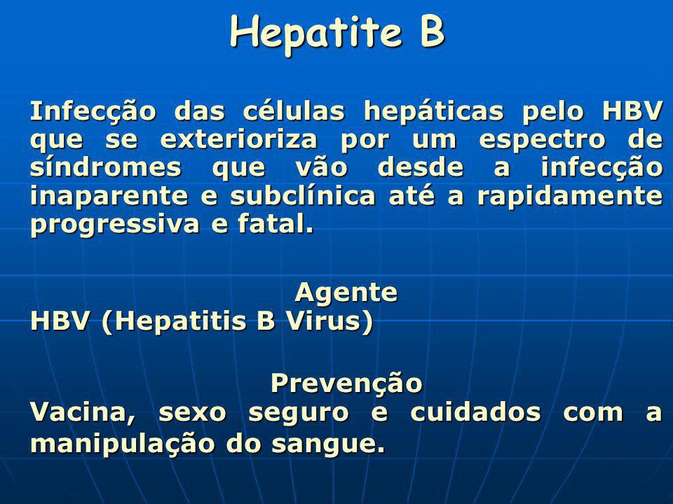 Hepatite B Infecção das células hepáticas pelo HBV que se exterioriza por um espectro de síndromes que vão desde a infecção inaparente e subclínica at