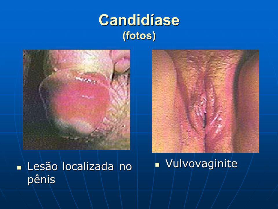 Candidíase (fotos) Lesão localizada no pênis Lesão localizada no pênis Vulvovaginite Vulvovaginite