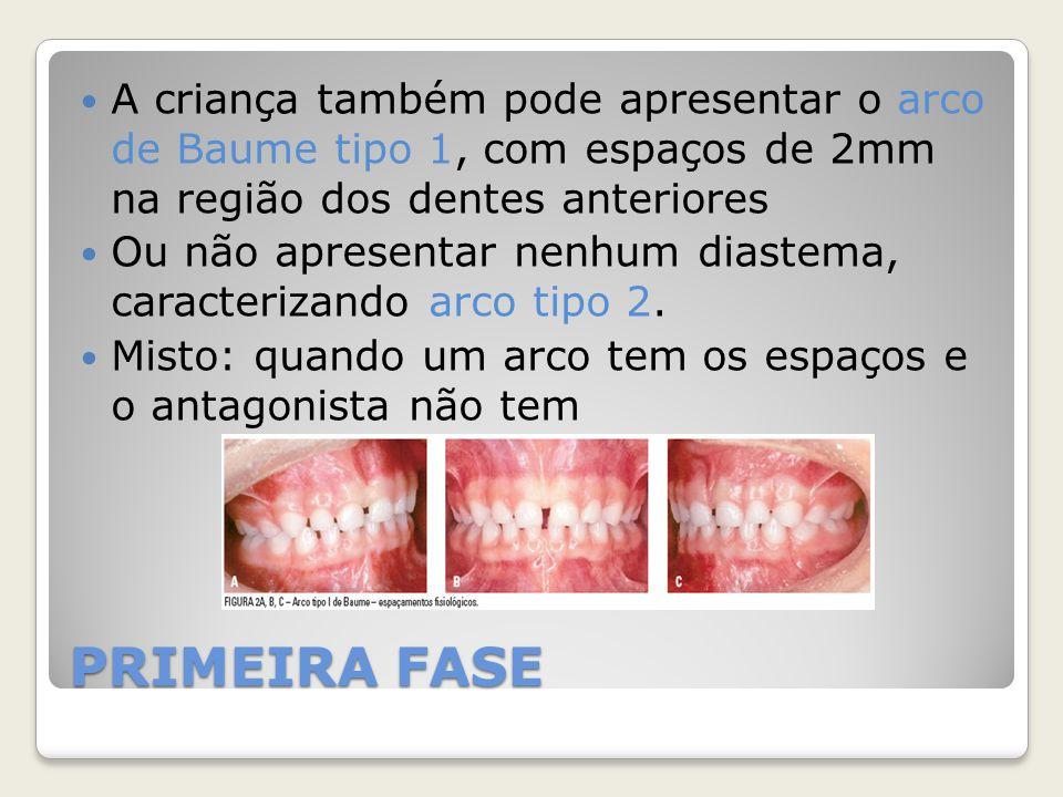 A criança também pode apresentar o arco de Baume tipo 1, com espaços de 2mm na região dos dentes anteriores Ou não apresentar nenhum diastema, caracte
