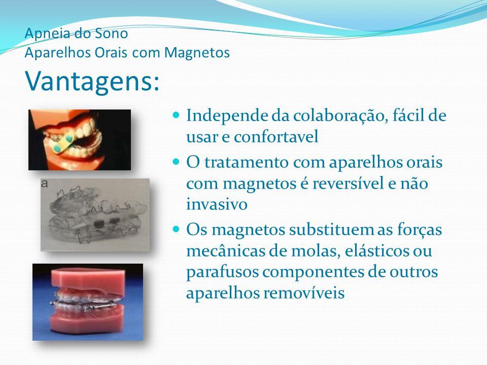 Apneia do Sono Aparelhos Orais com Magnetos Modo de Atuação Denominados aparelhos de avanço mandibular ou mordida construtiva na linguagem da ortopedia facial.